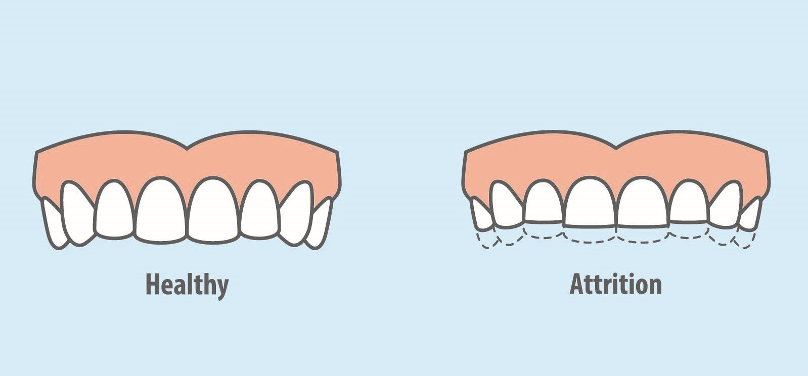 GSD-Dental-Attrition-Blog1