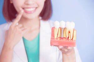GSD-Dental-Implants-Everything-You-Need-To-Know-Blog