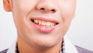 GSD-Tooth-Discoloration-Image