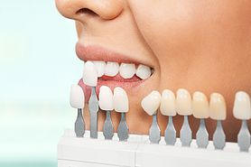 Teeth Whitening or Dental Work? What Should Come First?